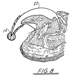 A diagram of a cat nail showing a nail cap covering the sharp half of the nail, without interfering with normal nail retraction.